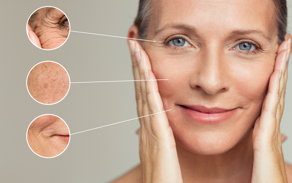 7 Natural Home Remedies to Reduce Wrinkles and Fine Lines