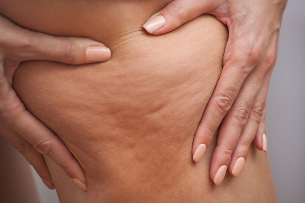 The Brief Guide That Makes Cellulite Reduction a Simple Process